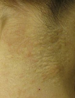 Pseudoxanthoma elasticum Human disease