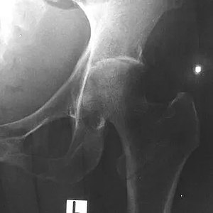 Septic arthritis of left hip joint with melioidosis