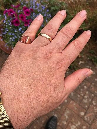 Little finger - Signet ring (little finger) and wedding ring (ring finger) on a left hand.