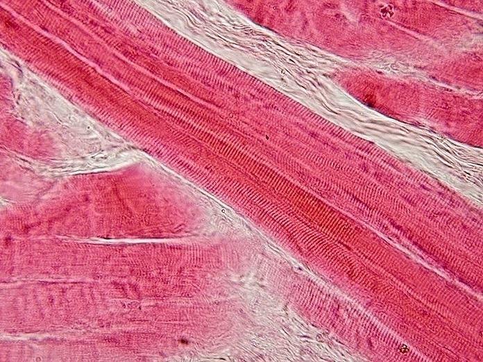 Skeletal muscle - longitudinal section