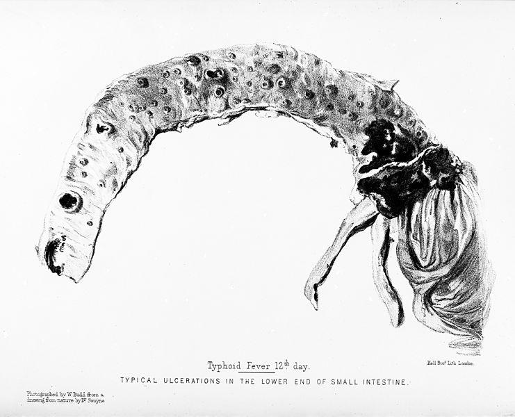 File:Small intestine; symptoms of typhoid fever. Wellcome M0012981.jpg