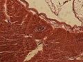 Trichinella spiralis (YPM IZ 095203).jpeg