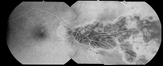 Optic pit - Large optic pit (fluorescein angiography)