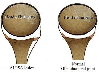 ALPSA lesion - Image: ALPSA Lesion