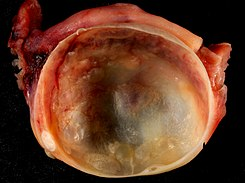ovarian cyst pictures