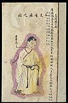 C19 Chinese MS moxibustion point chart; Scrofula point Wellcome L0039512.jpg