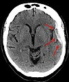 Ct-scan of the brain with an subdural hematoma.jpg