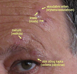 Herpes zoster ophthalmicus Human disease