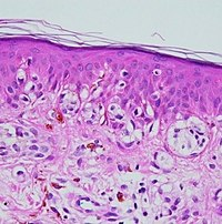 Histopathology of melanocytic nevus.jpg