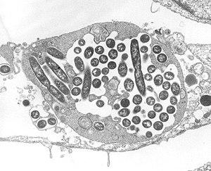 Intracellular Legionella organisms