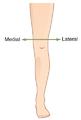 Medial Distal leg.png