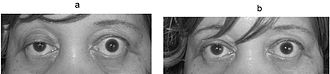 Photograph of a person showing right partial ptosis (left picture), the left lid shows compensatory pseudo lid retraction because of equal innervation of the m. levator palpabrae superioris (Hering's law of equal innervation): Right picture: after an edrophonium test, note the improvement in ptosis. Myasthenia gravis ptosis reversal.jpg