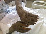 Norwegian Scabies in Homeless AIDS Patient.jpg