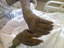 Diffuse thickening of the skin over an adult's bilateral arms and fingers