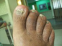 Onychomycosis In Every Nail Of The Right Foot