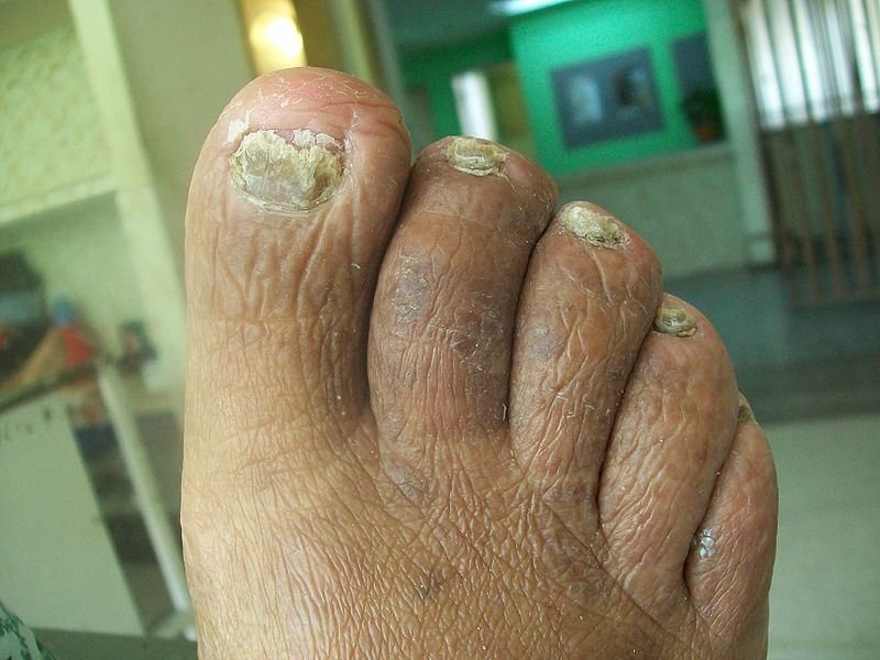 The Nail Chronicles: Onychomycosis(a-knee-co-my-co-sis)
