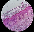 Pagetoid peripherally to a melanoma in situ.jpg