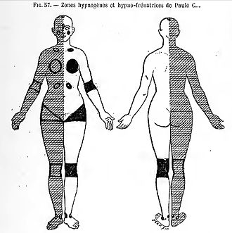 "John Milne Bramwell - Pitres' 1884 diagram of the 'hypnogenetic zones' and 'hypno-arresting zones' on his patient, ""Paule C—"""