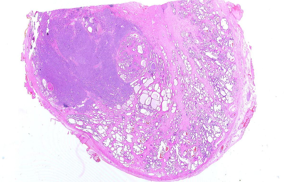 adenoma de próstata con imágenes de flequillo