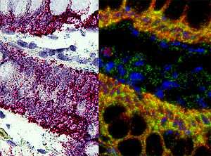 In situ hybridization - RNA in situ hybridization - KRT5 and housekeeping gene in human melanoma FFPE tissue section - visualized under brightfield and fluorescence microscope