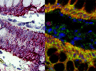 In situ hybridization - RNA in situ hybridization - KRT5 and housekeeping gene in. human melanoma FFPE tissue section - visualized under brightfield and fluorescence microscope