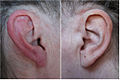 Red ear syndrome.jpg