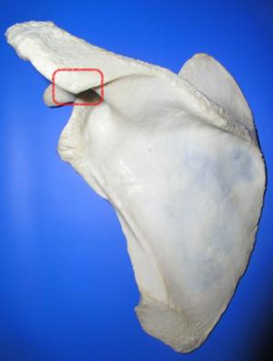 Acromial angle - Image: Scapula post acromial angle of left scapula