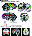 Schematic of cortical areas involved with pain processing and fMRI.jpg