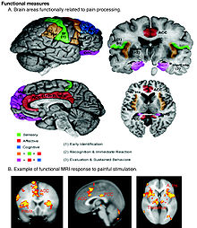 Image result for regions of the brain that are involved with pain