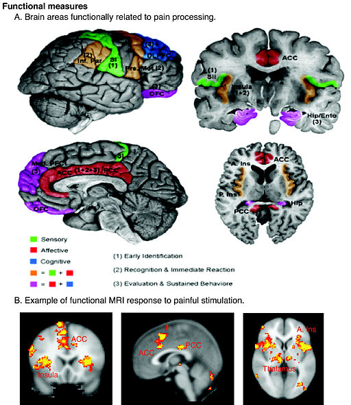 Schematic of cortical areas involved with pain processing and fMRI