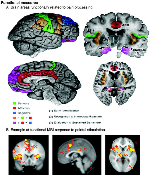 File:Schematic of cortical areas involved with pain processing and fMRI.jpg