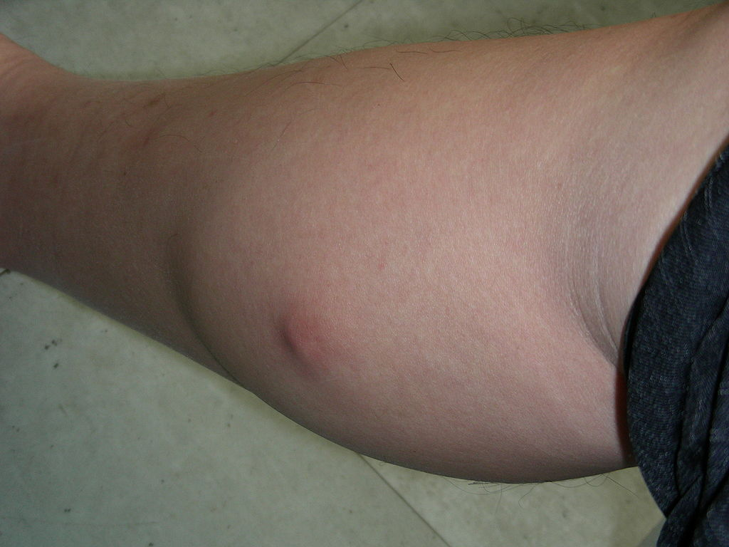 Lyme Disease Ring