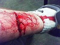 на ноге рана фото