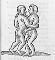 Siamese twins. Wellcome L0005358.jpg