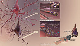 TanglesThe tau proteins holding the microtubules together undergo a chemical change called hyperphosphorylation. They now no longer hold the microtubule together.