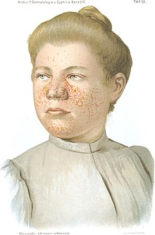 Head and shoulders of a young lady wearing a blouse, looking slightly to her right. Her light brown hair is tied up. Her face is covered in red pimples, particularly the cheeks around her nose, the fleshy part of her nose, and her chin.
