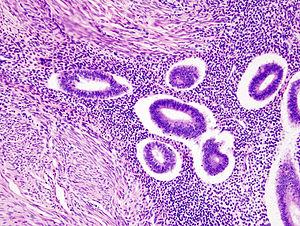 Uterine adenomyosis (1)