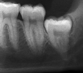 Vertical impaction wisdom tooth infection.png