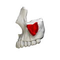 Zygomatic process of maxilla - close up - lateral view.png
