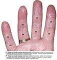 Рис.17. Атеросклероз артерий конечностей.jpg