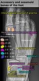 Accessory and sesamoid bones of the foot - dorsoplantar projection.jpg