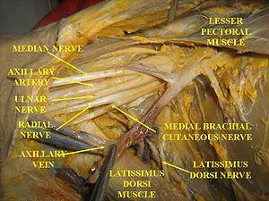 English: Brachial plexus