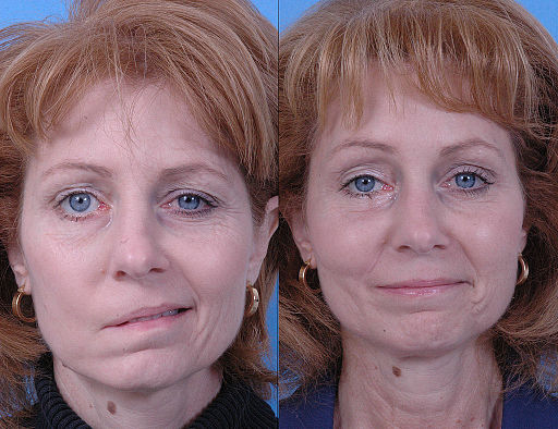 Before and after dynamic smile reconstruction