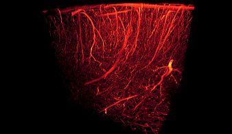 Blood vessels-3D rendering.jpg