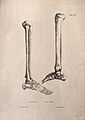 Bones of the foot and lower leg; two figures. Lithograph by Wellcome V0008191EL.jpg
