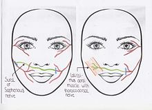 Exact repair damaged facial nerves