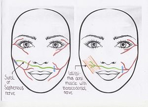 Facial paralysis Facial paralysis is a physical problem where that the facial muscles tend to be paralyzed.  This specific problem comes when the nerve handling of facial muscles isn't performing correctly. There are some obvious signs and Symptoms are seen within the individuals.  There are seen two type of facial paralysis.  They are congenital Facial Paralysis and Acquired Facial Paralysis . Many children together with congenial Facial Paralysis are injured only one side of the face. This is called unilateral facial paralysis. Fewer children have got this problem on both faces, which are called bilateral skin paralysis. On the other hand, in acquired facial paralysis, the muscles or nerves stop working at earlier childhood. Usually, this is because of a trauma on the facial nerve. Nonetheless, there might be various others cause that create this problem for instance tumors, others diseases and infections. These sign and Symptom included Squinting, Frowning, inflammation of cheeks, smiling, wrinkle in the brow, pain in the ear, reduced sense of taste and pointed lips.  The most typical is Bell's palsy which will be clinically determined by exclusion. This problem occurs any time of your life when you are not capable to move the muscles on one side to others. This problem is a devastating condition in which the nerve which is liable for facial movement is actually damaged.   Heart stroke might cause this health problem. Additional reasons includes Infection, Lyme diseases, Tumor on the facial nerve and Sarcoidosis .The results of this problem are worsened through the normal-functioning of the face of individuals.  In the Facial paralysis conditions, the patients generally needs simply no treatment method since it recovers automatically. This problem is actually created due to infections of some micro-organism. So some antibiotics targeted at this organism will be prescribed if needed.  Treatment of this problem, a tumor surgical procedure could possibly be pertinent to help remedy this damaged nerve. In rarer cases transplant of the nerve tissue through the skin could possibly be experimented with an individual. Almost all forms of facial paralysis can't be prevented. Prevention can be performed in the event that if the facial paralysis is actually caused by contamination with borrelia.