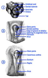 Injury curvature penis