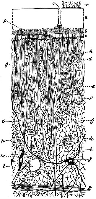 EB1911 Tapeworms - body-wall of a young Ligula.jpg