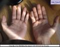 Hands Front JSV 002.png